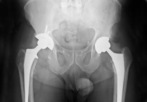 Röntgenaufnahme von zwei künstlichen Hüftgelenken